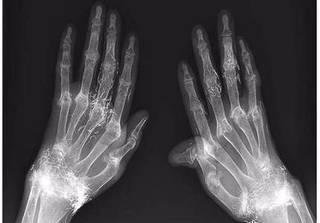 Có thể trị thấp khớp bằng cách dùng vàng khâu khớp tay?