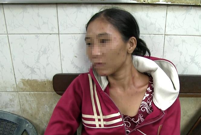 Chuyển bà mẹ ôm con xin tiền chích ma túy vào trại cai nghiện