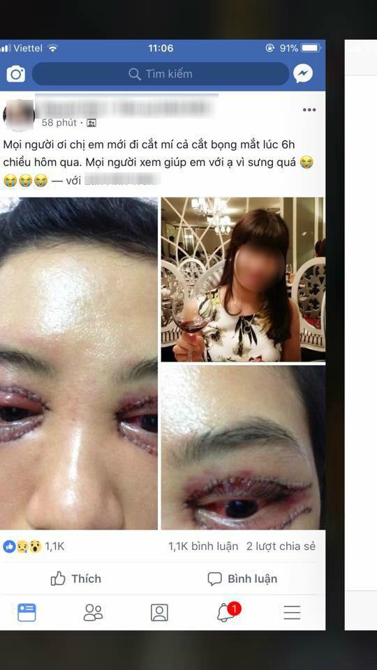 Cô gái đi cắt mí mắt hỏng gây xôn xao mạng xã hội, chủ Spa lên tiếng