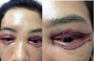 Cô gái cắt mí mắt bị hỏng gây xôn xao mạng xã hội, chủ Spa lên tiếng trần tình sự việc