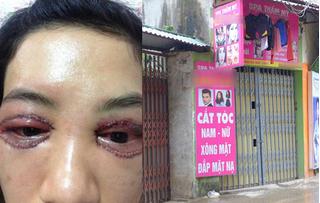 Cô gái cắt mí mắt hỏng tại Spa: