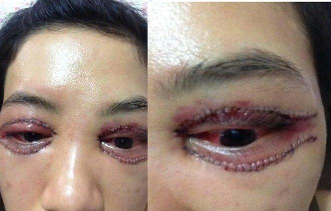 phẫu thuật thẩm mỹ căt mí mắt
