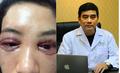 Vụ cô gái cắt mí bị hỏng ở Spa, bác sỹ cảnh báo những biến chứng kinh hoàng