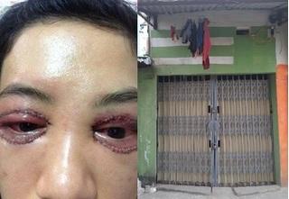 Vụ cô gái cắt mí mắt hỏng tại Hà Nội: Spa đóng cửa gỡ hết biển và trốn khỏi cơ sở