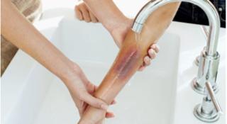 Cảnh báo nước tẩy rửa vệ sinh nguy cơ gây bỏng nặng, chớ bỏ qua