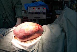 """Mổ thành công khối u """"khổng lồ"""" nặng 5kg trong bụng cô gái"""