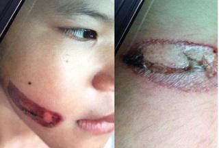 Bé gái 7 tuổi nghi bị bố đẻ và mẹ kế bạo hành dã man, nung sắt đỏ dí vào mặt