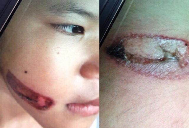 Bé gái bị cha ruột dí thanh sắt nóng vào mặt đã được cách ly
