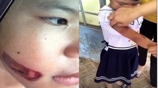 Bé gái bị hành hạ dí thanh sắt vào mặt đã được cách ly khỏi cha ruột và mẹ kế