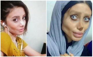 Phẫu thuật thẩm mỹ để giống hình mẫu Angela Jolie, cô gái hóa