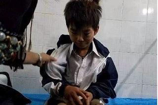 Bé trai 11 tuổi bị bố đánh đập dã man dẫn đến đa chấn thương