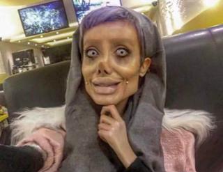 Cô gái thẩm mỹ 50 lần để giống Angelina Jolie tự vạch trần mình