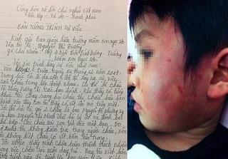 Mẹ cháu bé nghi bị bạo hành ở trường mầm non: