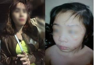 Mẹ ruột bé trai bị bạo hành ở Hà Nội:
