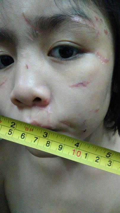 Khuôn mặt bé trai chi chít những vết thương do bị bạo hành