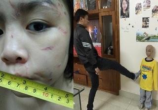 Bé trai bị bạo hành dã man ở Hà Nội:
