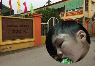 Trường học nơi bé trai bị bố ruột và mẹ kế bạo hành ở Hà Nội: