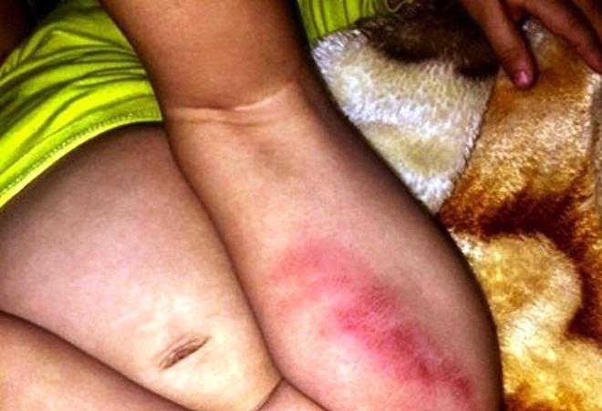 Tạm đình chỉ nhà trẻ để bé 16 tháng bị thương ở đùi và vùng kín