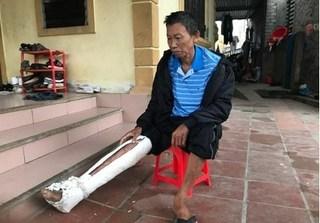 Bắt giam nghịch tử đánh cha gãy xương sườn, mẻ xương ống chân