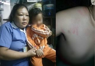 Bé 4 tuổi bị bạo hành tại Mầm Xanh nghi tiếp tục bị đánh ở trường mới