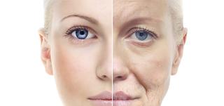 Công nghệ RF mang lại tác dụng kép trong việc chống lão hóa da