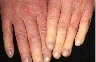 Cước tay chân đau đến chảy máu cũng khỏi nhờ bài thuốc từ lá lốt này