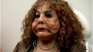 """Bị """"lang băm thẩm mỹ"""" bơm xi măng vào mặt, người phụ nữ biến dạng"""