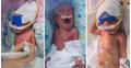 Ca sinh ba dài nhất thế giới, hết đẻ thường lại mổ vài ngày mới xong