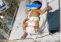 Bé gái 32 tuần tuổi nghi bị mẹ đẻ đặt thuốc ép cho chết để sinh non