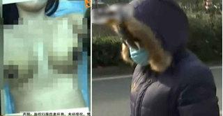 Cô gái bị hoại tử ngực vì lý khiến bất kỳ ai nghe cũng choáng