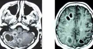 Sán lên não, bệnh nhân tưởng nhầm là bị ung thư, thần kinh