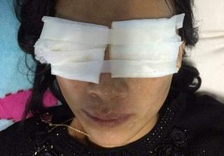 Quảng Bình: Mẹ chồng tạt ca axit vào người con dâu chết tại nhà