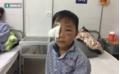 Sang nhà bác chơi, bé trai 8 tuổi bị chó cắn thủng mắt