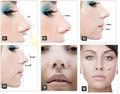 Nâng mũi S line 3D - Công nghệ nâng mũi tiên tiến nhất hiện nay