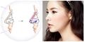 Phương pháp nâng mũi bọc sụn tạo hình mũi đẹp và sang