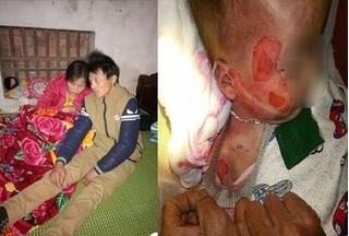 Vụ bé 15 tháng tuổi tử vong với nhiều vết thương 'lạ': Trước đó gia đình đã từng mất 2 con