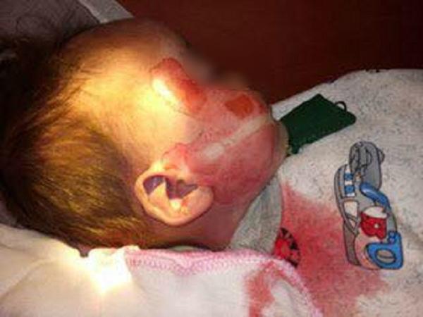 Bé trai 15 tháng tuổi tử vong có vết rách ở mặt, ở vài và máu chảy trong tai