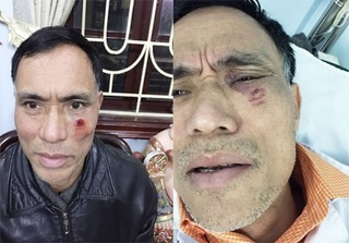 Hà Nội: Phó trưởng Công an xã bị tố dùng búa đinh đánh người dân nhập viện