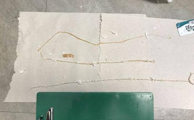 sán dây dài 3m