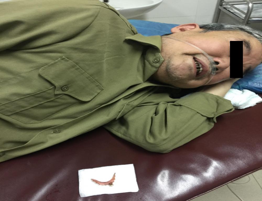 bệnh nhân uống thuốc nuốt nhầm cầu răng giả 2