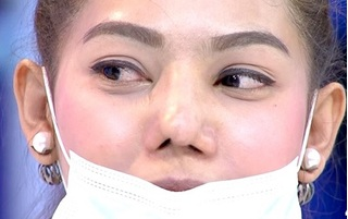 Tình trạng mũi hỏng sau phẫu thuật thẩm mỹ