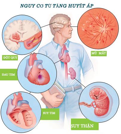 cách sơ cứu cho người tăng huyết áp dịp Tết 2