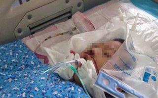Chỉ vì giành chỗ trên xe buýt, bé trai bị ông lão 70 tuổi lôi kéo đến chấn thương sọ não