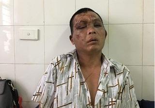 Người đàn ông bị đánh oan vì nghi bắt cóc trẻ em: