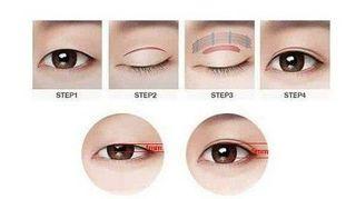 Phẫu thuật thẩm mỹ mắt to – Giải pháp tạo hình mắt đẹp