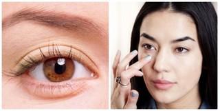 Giải pháp phẫu thuật cắt bọng mỡ mắt thẩm mỹ cao