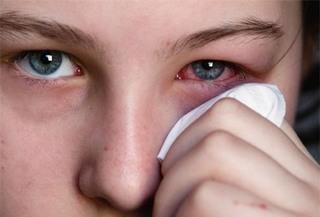 Xuất hiện 'bệnh lạ' ở trẻ nam từ 5 đến 20 tuổi thường xảy ra vào mùa Xuân