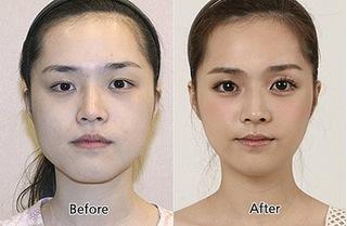Phẫu thuật cắt mắt to để đôi mắt to tròn thật thu hút