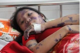 Nữ bệnh nhân nguy kịch vì biến chứng cảnh báo cao điểm về dịch thủy đậu