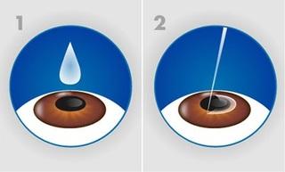 Phẫu thuật khúc xạ LASIK nhiều ưu điểm vượt trội